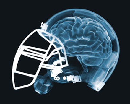 brain-injury-football