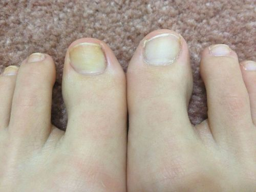 Whiten Nails